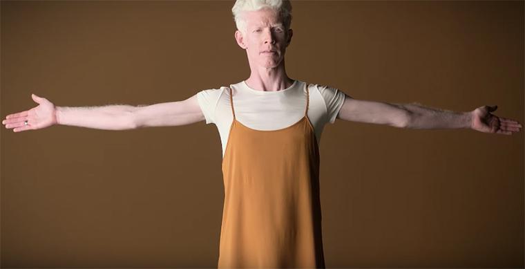 skol albino