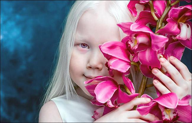 Garota albina vira sensação na internet e ajuda a derrubar preconceitos 7