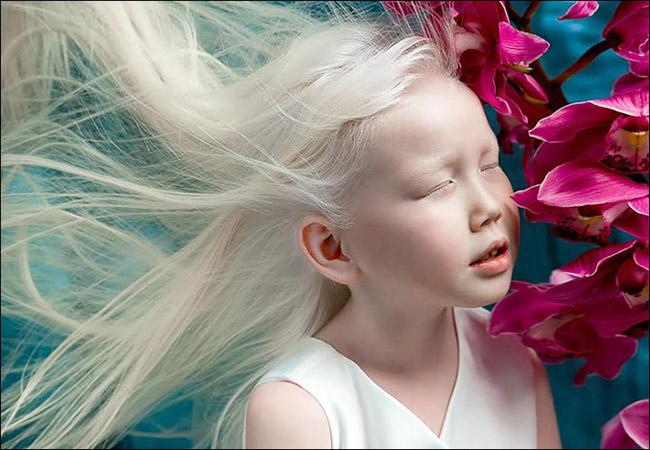 Garota albina vira sensação na internet e ajuda a derrubar preconceitos 6