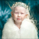 Garota albina