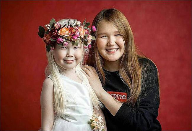 Garota albina vira sensação na internet e ajuda a derrubar preconceitos 2