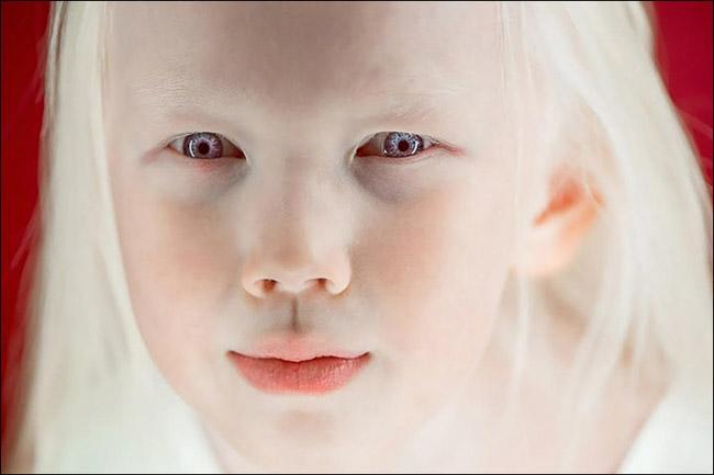 Garota albina vira sensação na internet e ajuda a derrubar preconceitos 8