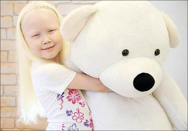 Garota albina vira sensação na internet e ajuda a derrubar preconceitos 4