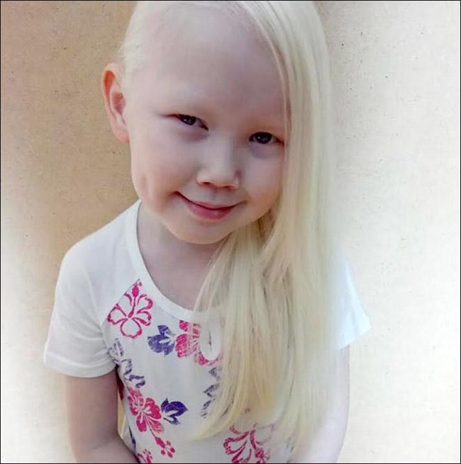 Garota albina vira sensação na internet e ajuda a derrubar preconceitos 3