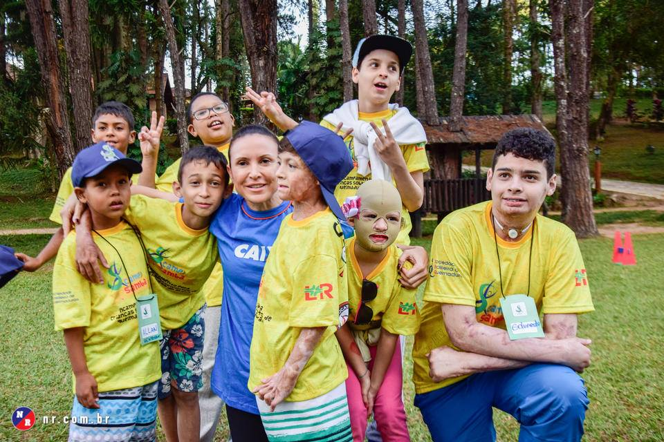Esse acampamento que reúne crianças sobreviventes de queimaduras vai fazer com que você queira ser voluntário 6