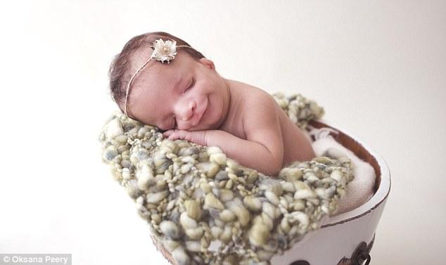 Pais adotivos rejeitam bebê com má-formação e mãe biológica decide ficar com sua filha 5
