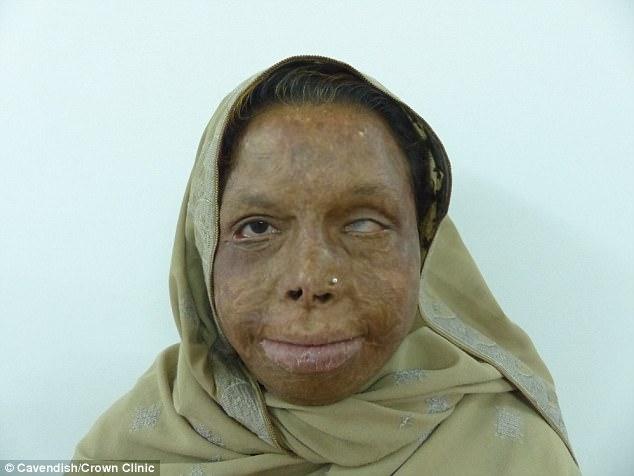 Cirurgião já desembolsou mais de R$ 180 mil para reconstruir rosto de mulheres vítimas de ataques a ácido 2