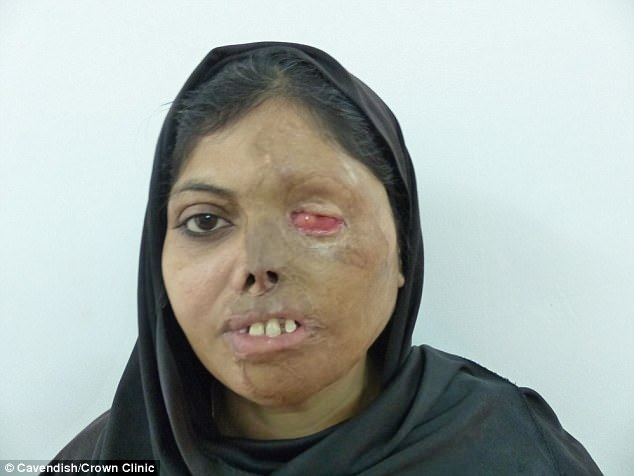 Cirurgião já desembolsou mais de R$ 180 mil para reconstruir rosto de mulheres vítimas de ataques a ácido 3