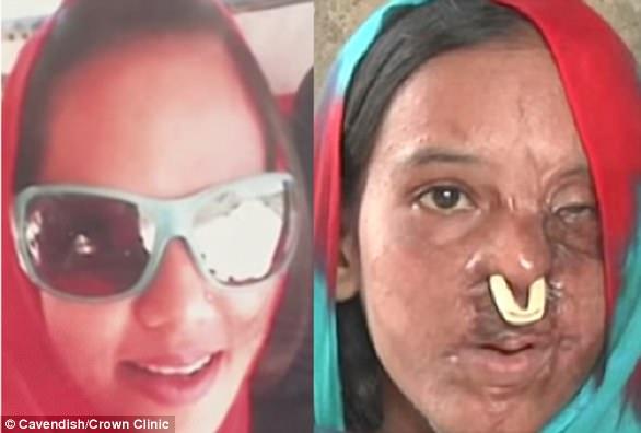 Cirurgião já desembolsou mais de R$ 180 mil para reconstruir rosto de mulheres vítimas de ataques a ácido 1