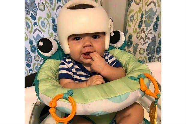 Família usa capacete para apoiar bebê com má formação no crânio e comove o mundo 1