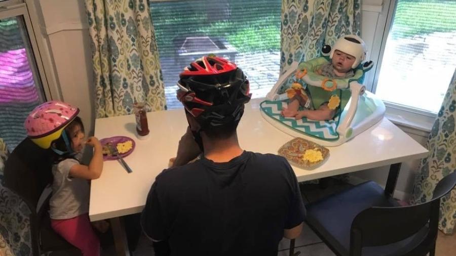 Família usa capacete para apoiar bebê com má formação no crânio e comove o mundo 2