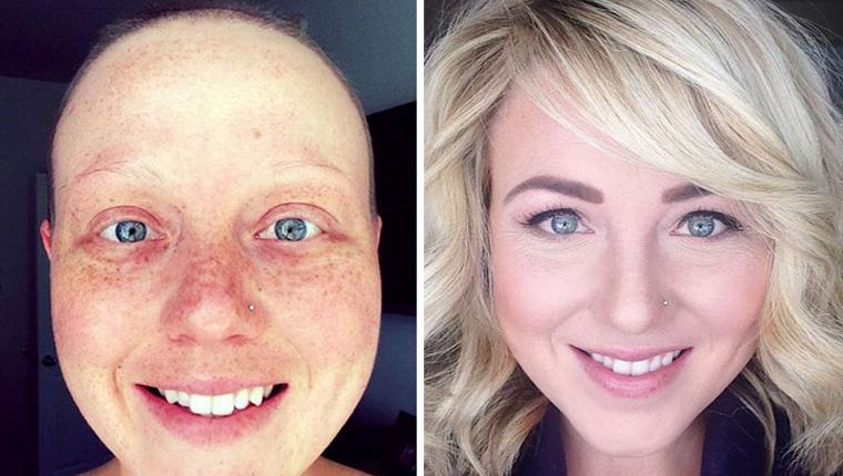 Essas 10 fotos de antes e depois de pessoas que venceram o câncer vão renovar suas esperanças 1