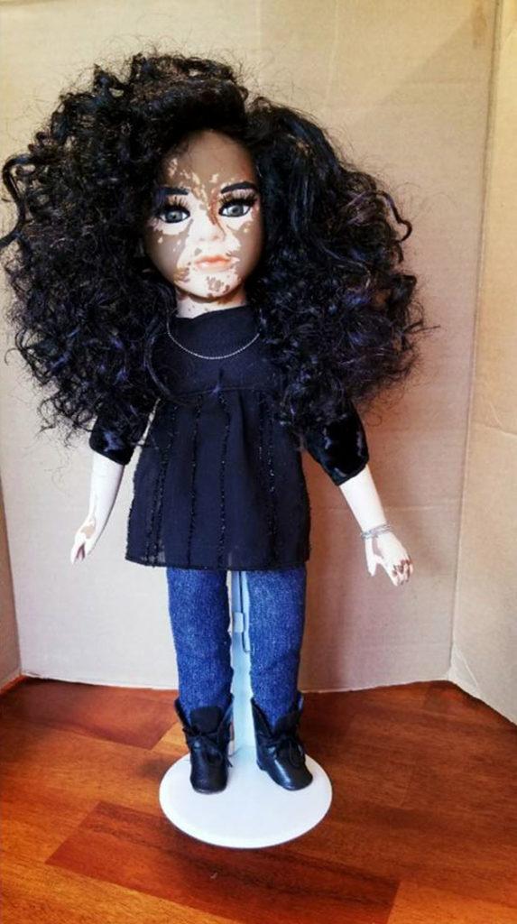 Artista cria bonecas com vitiligo para promover a autoaceitação das crianças com a doença 2