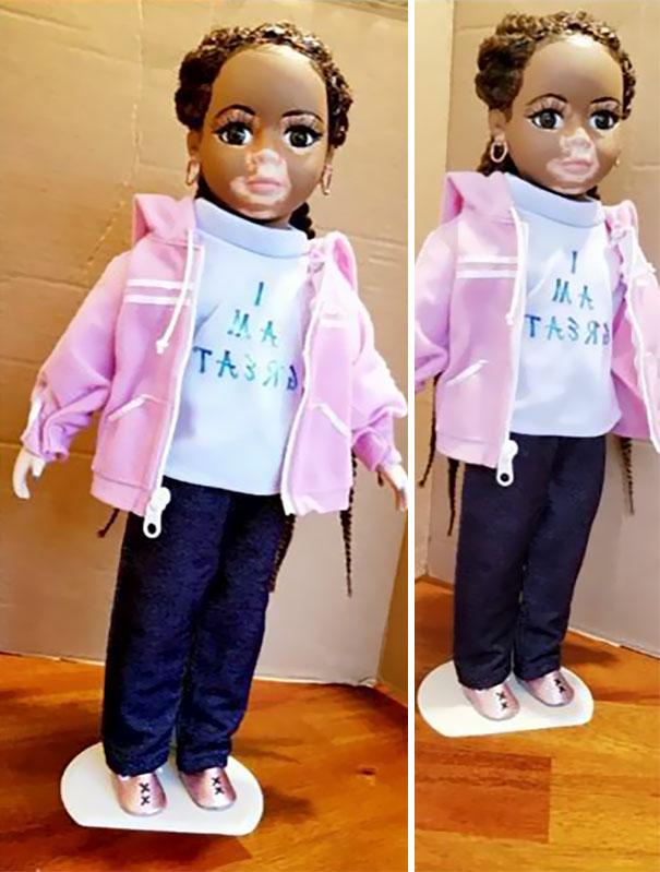 Artista cria bonecas com vitiligo para promover a autoaceitação das crianças com a doença 1