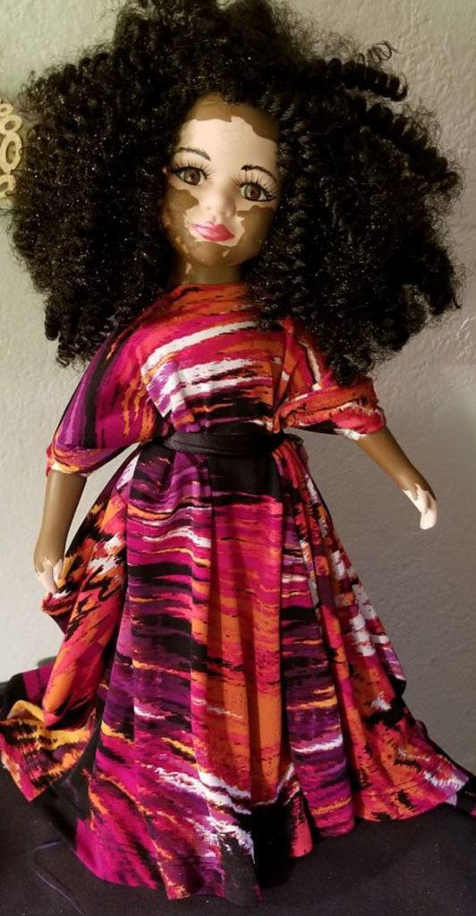 Artista cria bonecas com vitiligo para promover a autoaceitação das crianças com a doença 3