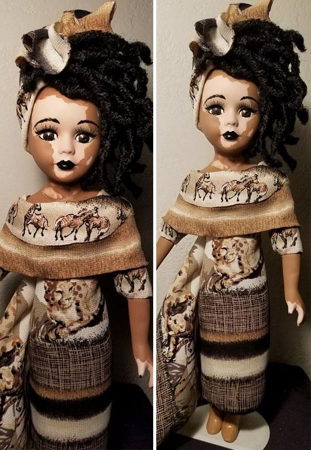 Artista cria bonecas com vitiligo para promover a autoaceitação das crianças com a doença 7