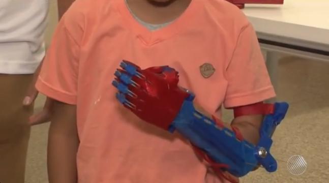 Garoto que nasceu sem uma das mãos na Bahia, ganha prótese personalizada do Homem Aranha 4