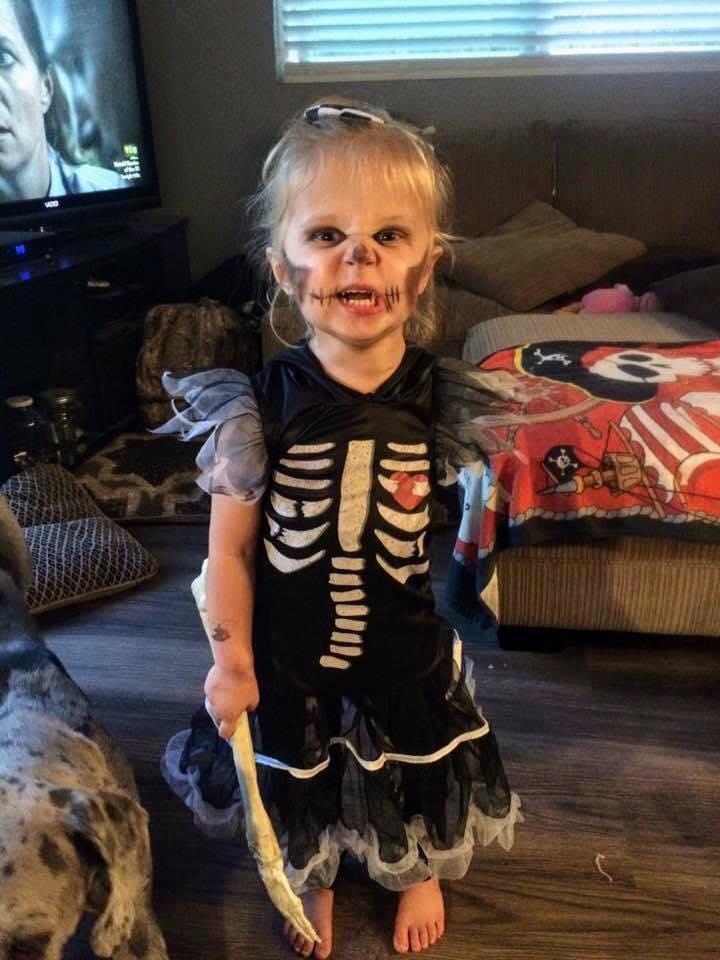 Mãe faz fantasias incríveis de Halloween para sua filha que teve o braço amputado 5
