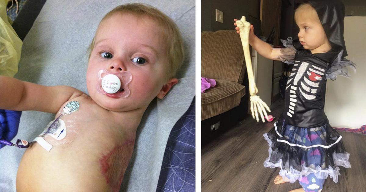 Mãe faz fantasias incríveis de Halloween para sua filha que teve o braço amputado 12