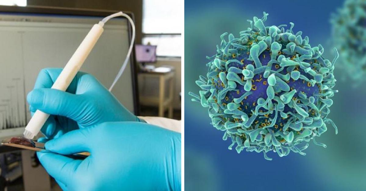 Pesquisadores americanos criam caneta capaz de detectar o câncer em apenas 10 segundos 1