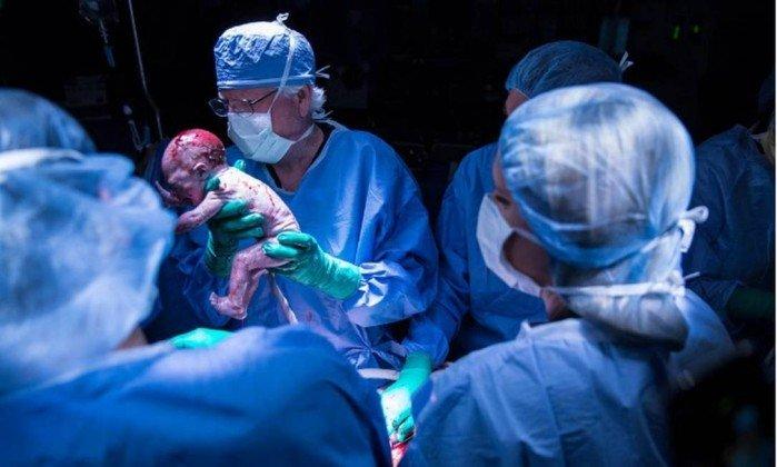 Mulher que teve o útero transplantado dá à luz nos Estados Unidos 1
