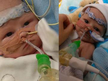 Bebê que nasceu sem a metade esquerda do coração ganha oportunidade de viver 3