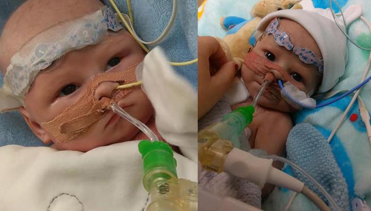 Bebê que nasceu sem a metade esquerda do coração ganha oportunidade de viver 1