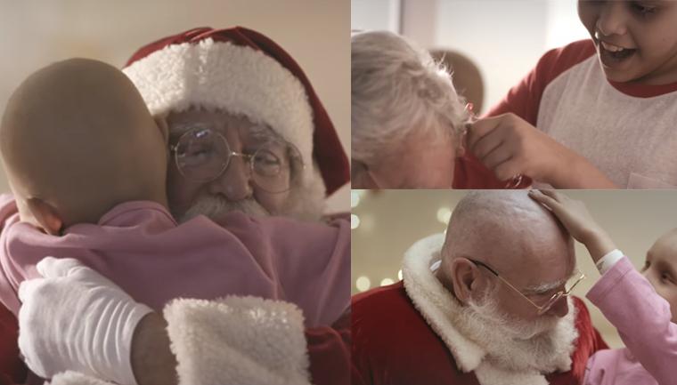 Papai Noel visita crianças com câncer e também fica careca para mostrar que é igual a elas 2