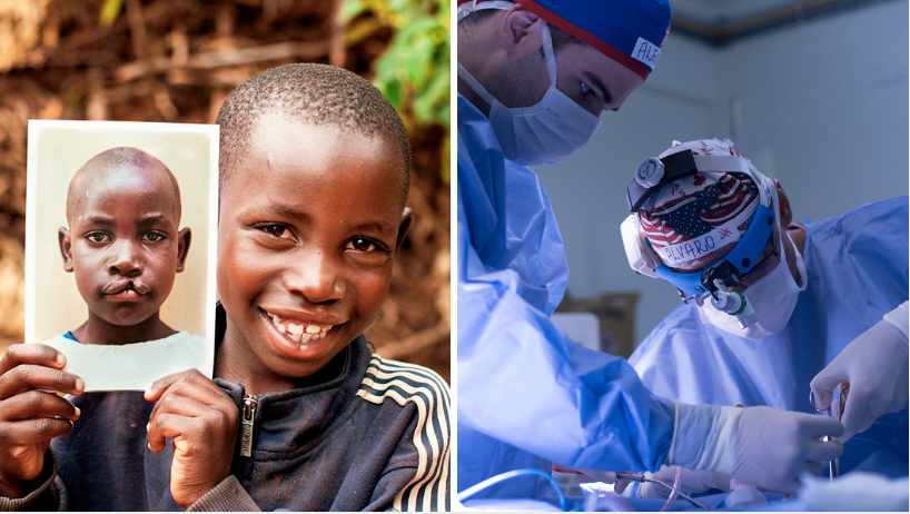 Mossoró recebe Operação Sorriso para novo mutirão de cirurgias gratuitas em pacientes com fissura labiopalatina 1