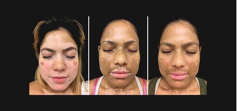 Terapia inovadora devolve a cor da pele para quem tem vitiligo 2