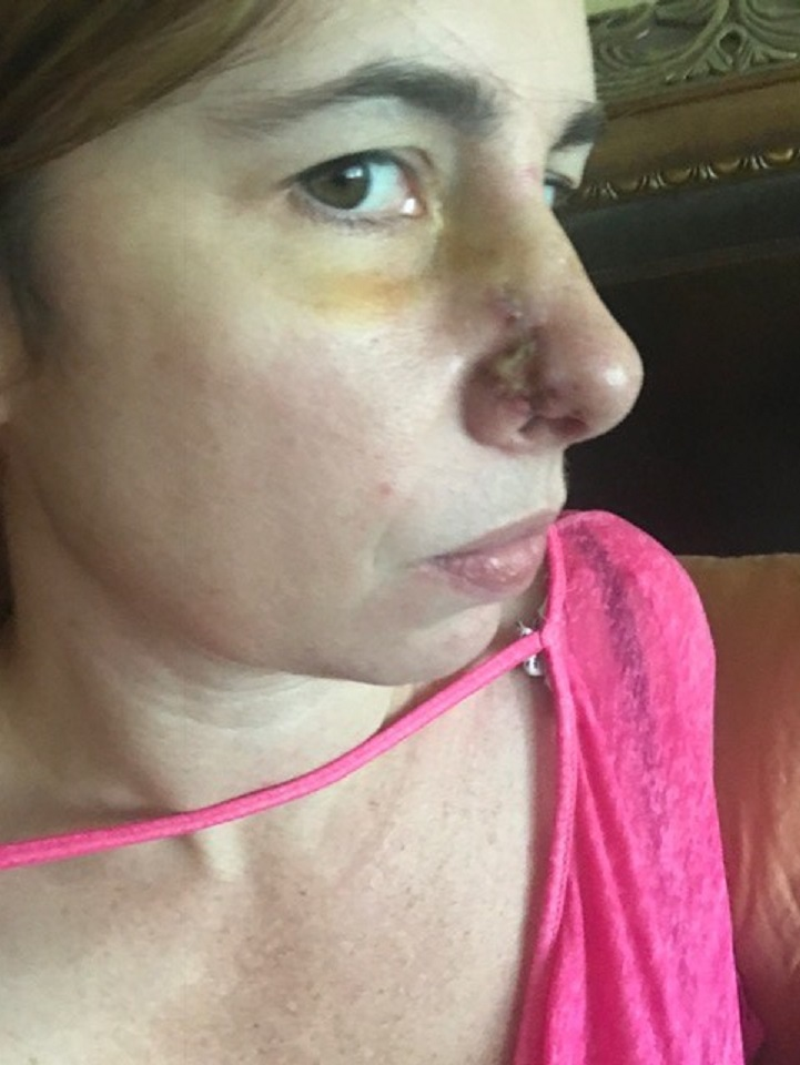 Cachorra resgatada detecta câncer em nariz da dona e salva sua vida 1