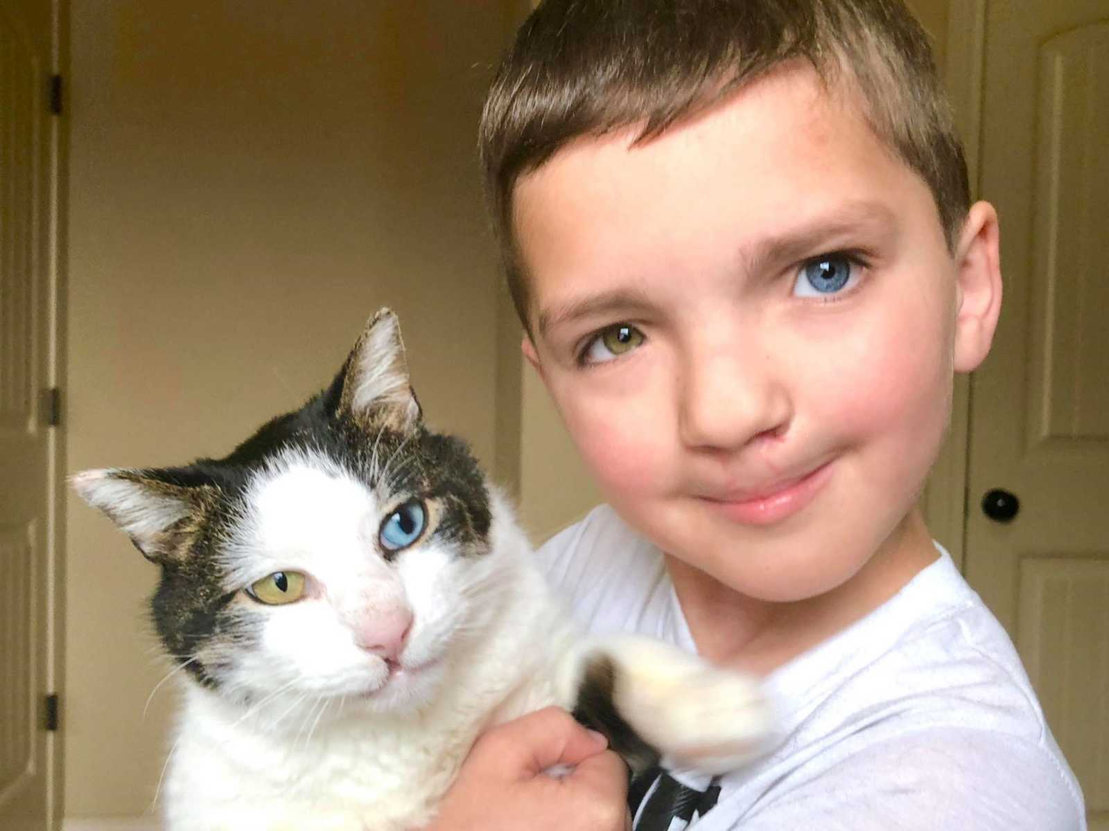 Garoto adota gatinha com as mesmas condições que ele mostrando que suas diferenças são lindas 2