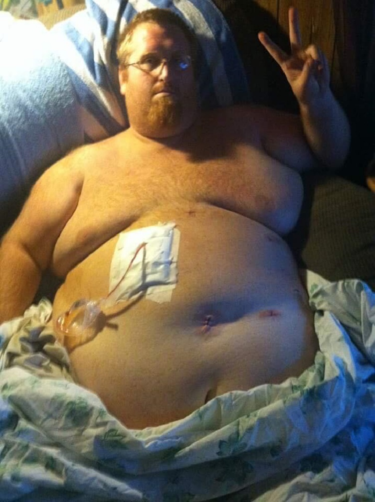 Homem perde mais de 160kg por medo de deixar filho autista sem pai 3