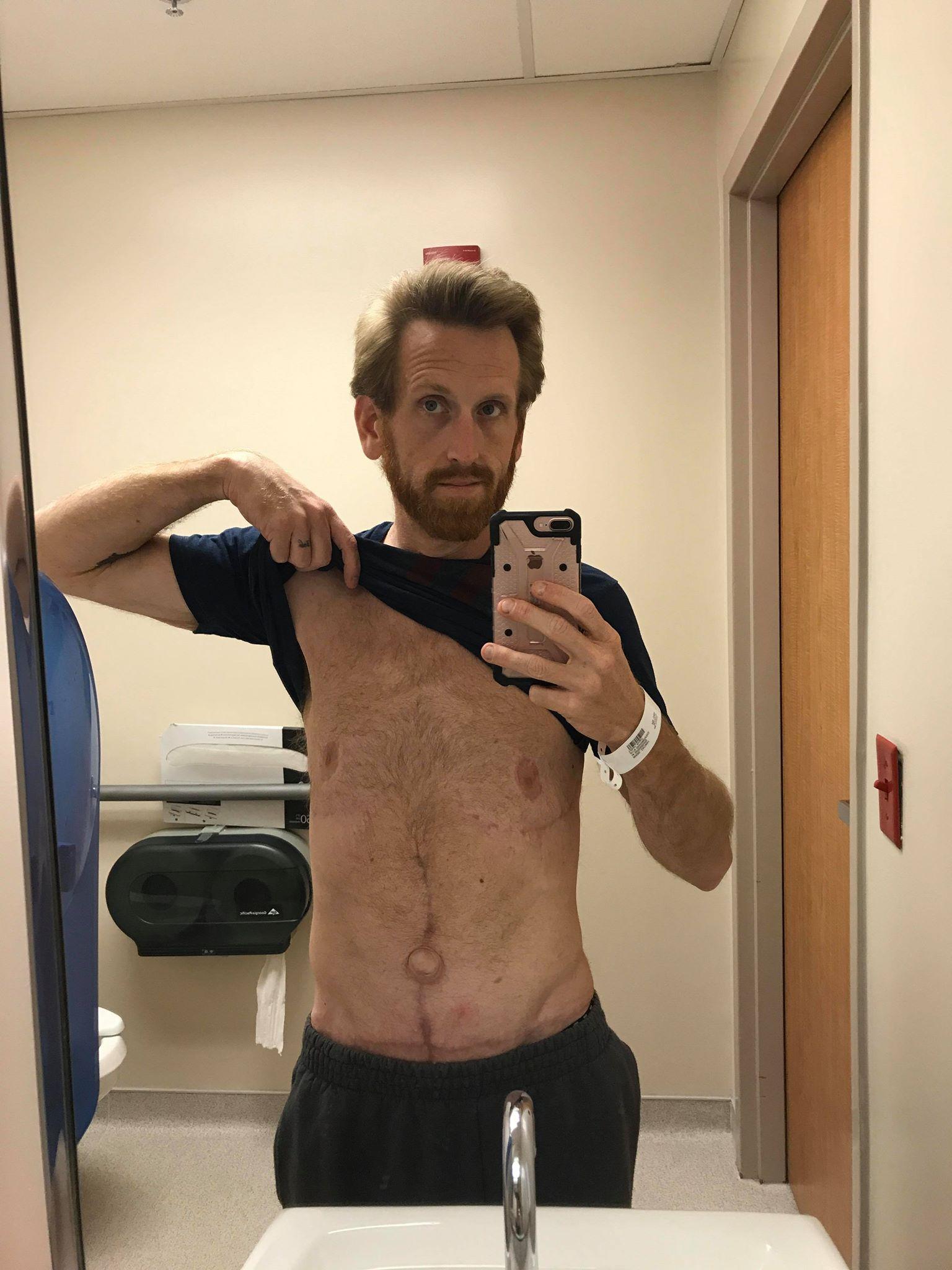Homem perde mais de 160kg por medo de deixar filho autista sem pai 12