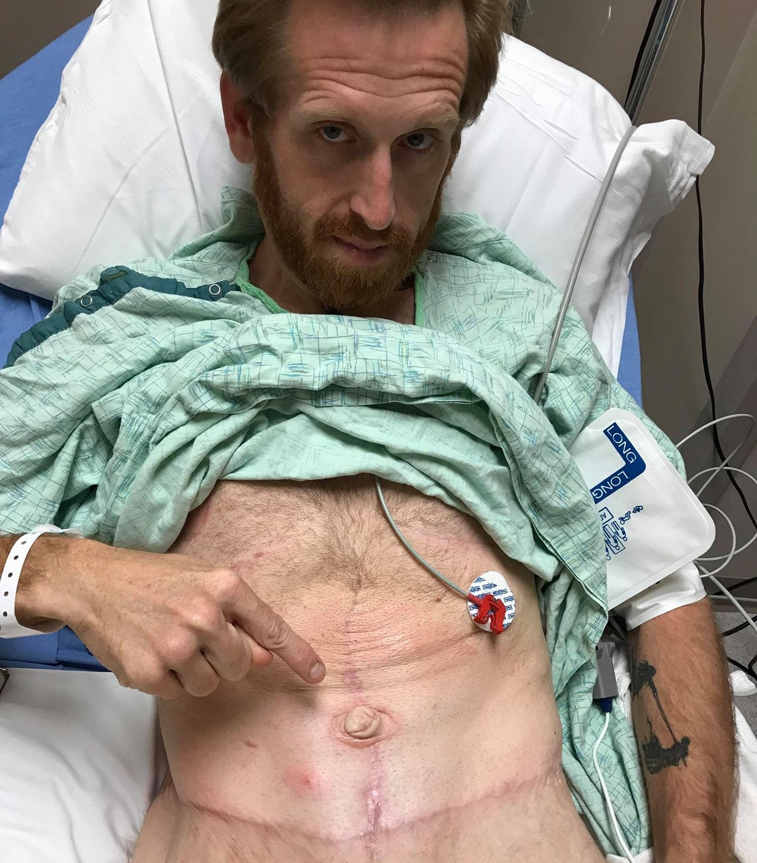 Homem perde mais de 160kg por medo de deixar filho autista sem pai 13