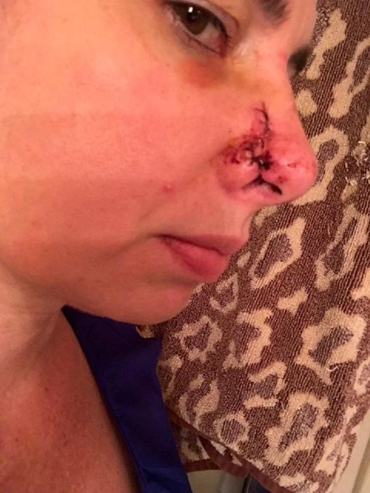 Cachorra resgatada detecta câncer em nariz da dona e salva sua vida 3