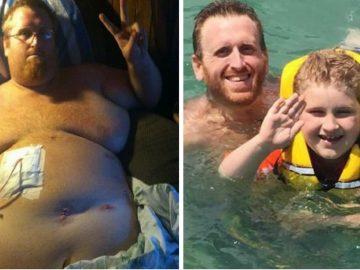 Homem perde mais de 160kg por medo de deixar filho autista sem pai 1