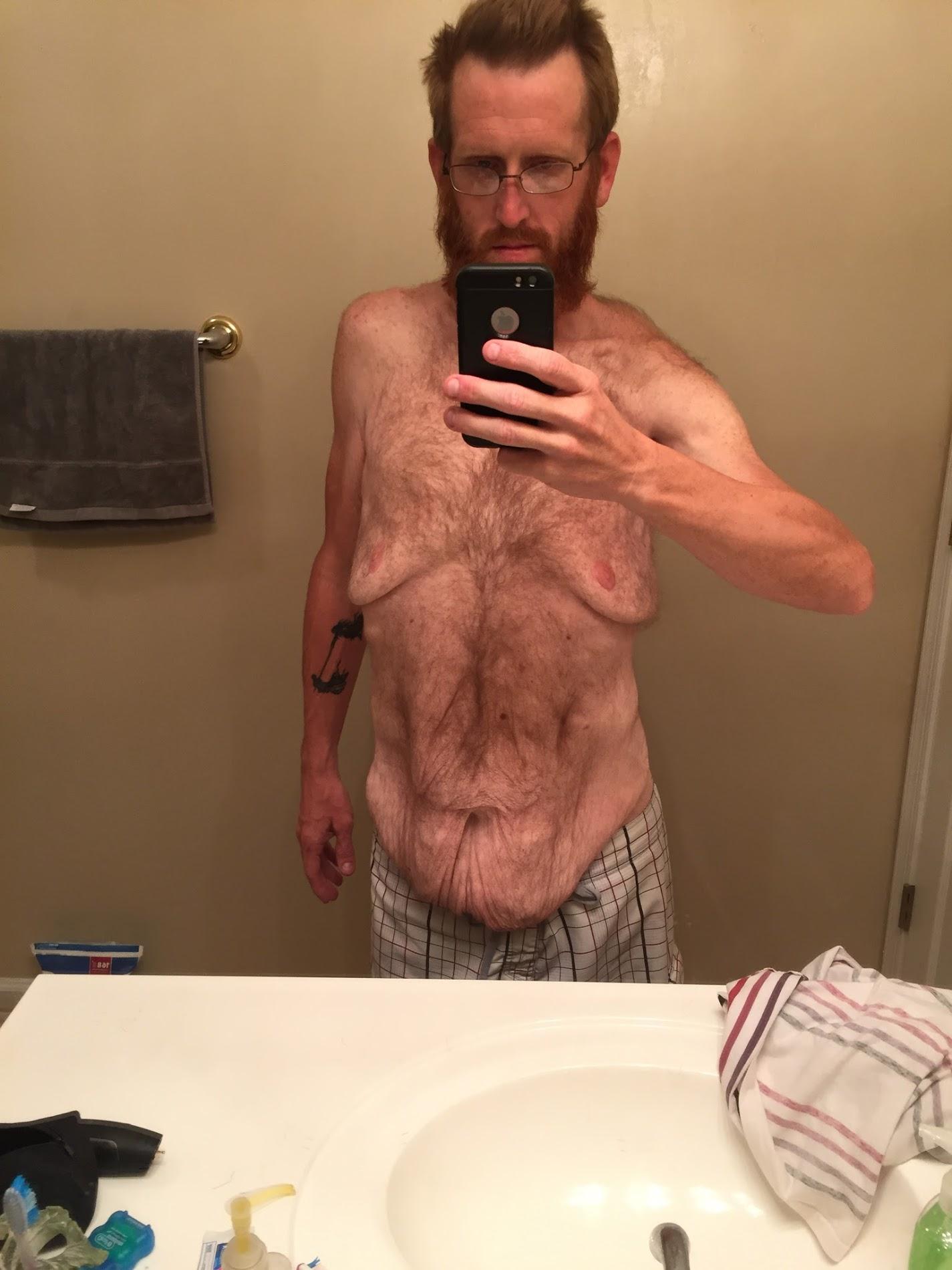 Homem perde mais de 160kg por medo de deixar filho autista sem pai 4