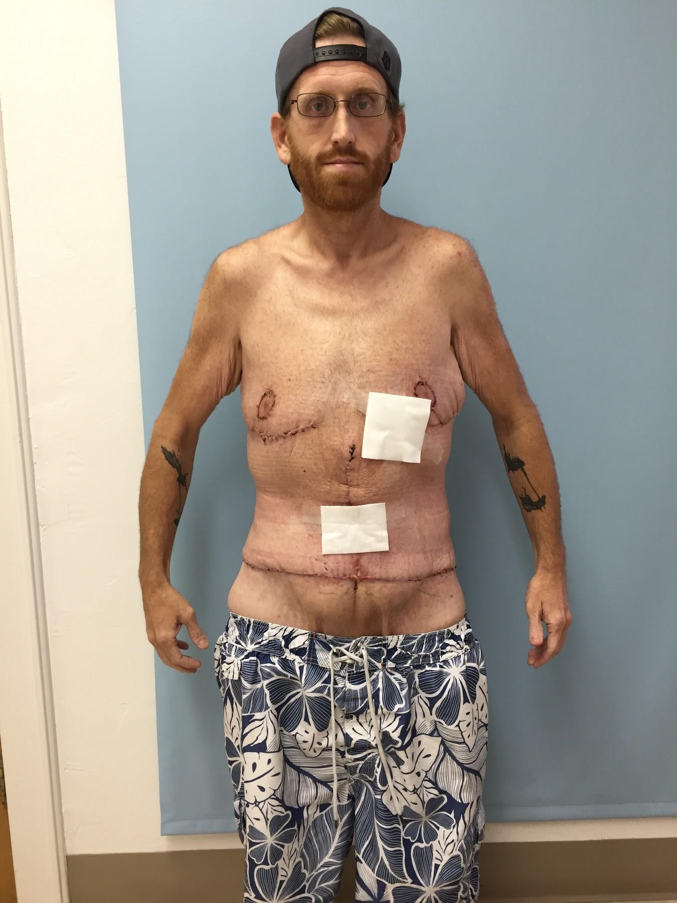 Homem perde mais de 160kg por medo de deixar filho autista sem pai 8