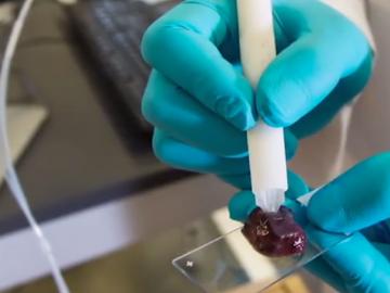 caneta detecta câncer segundos