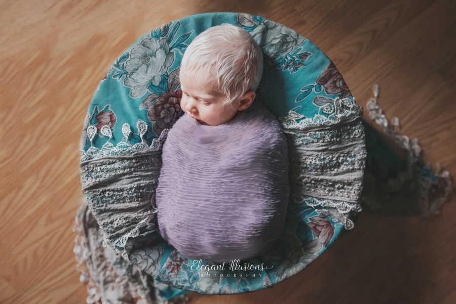 Mãe tem surpresa ao ver que sua filha é albina e faz poderoso depoimento 10