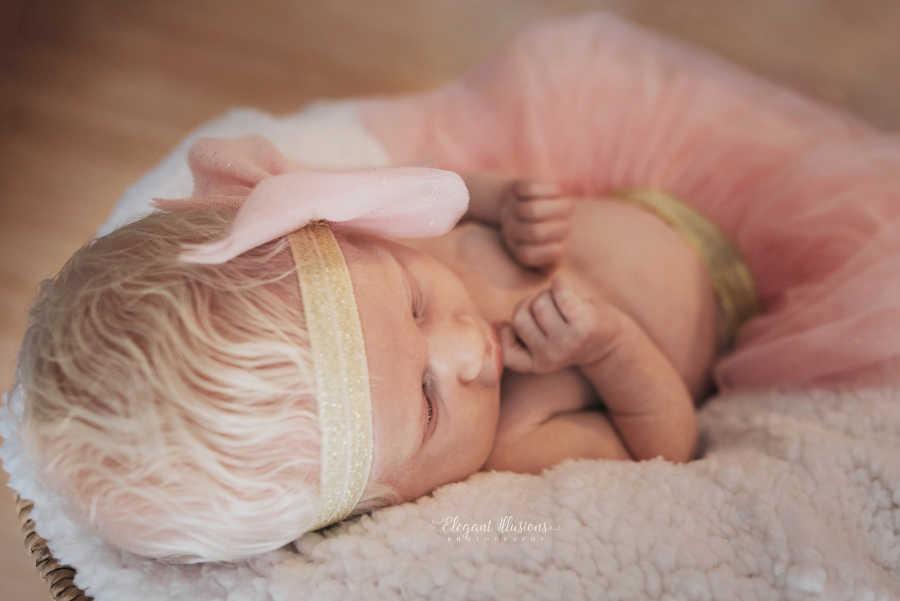 Mãe tem surpresa ao ver que sua filha é albina e faz poderoso depoimento 11