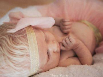 Mãe tem surpresa ao ver que sua filha é albina e faz poderoso depoimento 1