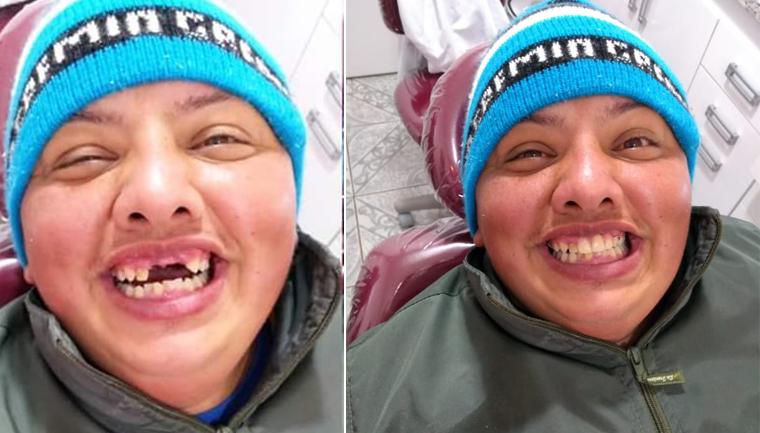 dentista devolve autoestima jovem perdeu dentes