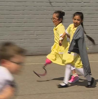 menina mostra prótese amigos reação emocionante