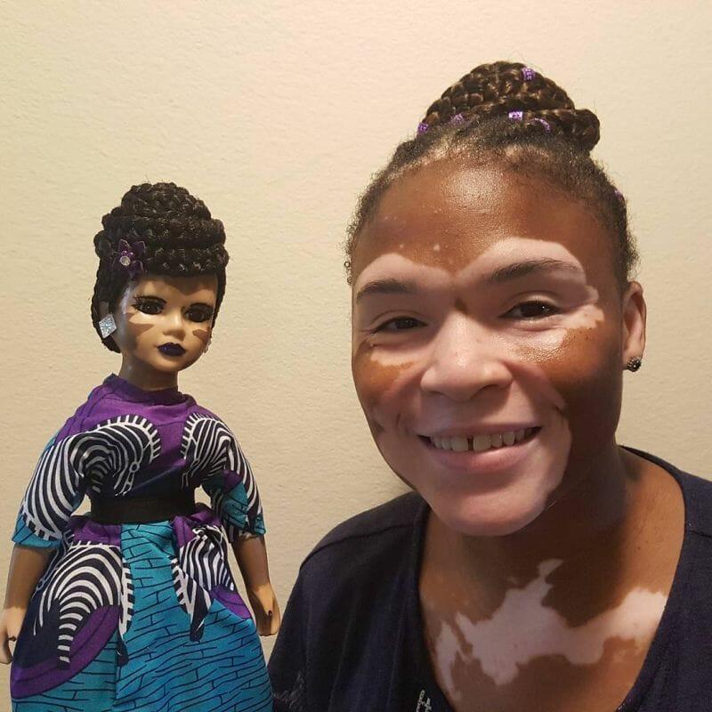artista cria bonecas vitiligo meninas amarem como são