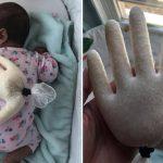 mãe usa luva borracha arroz aliviar cólicas bebê
