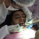 Faculdade faz tratamento odontológico