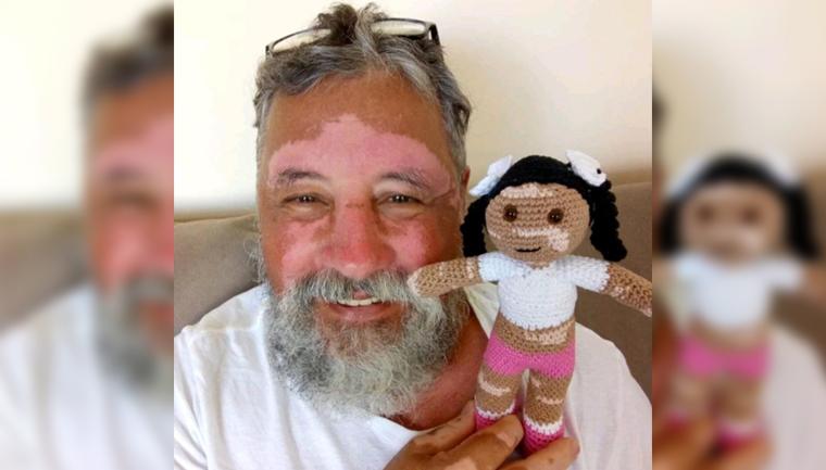homem faz boneca crochê vitiligo