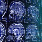 Inteligência artificial já consegue detectar Alzheimer até seis anos antes do diagnóstico